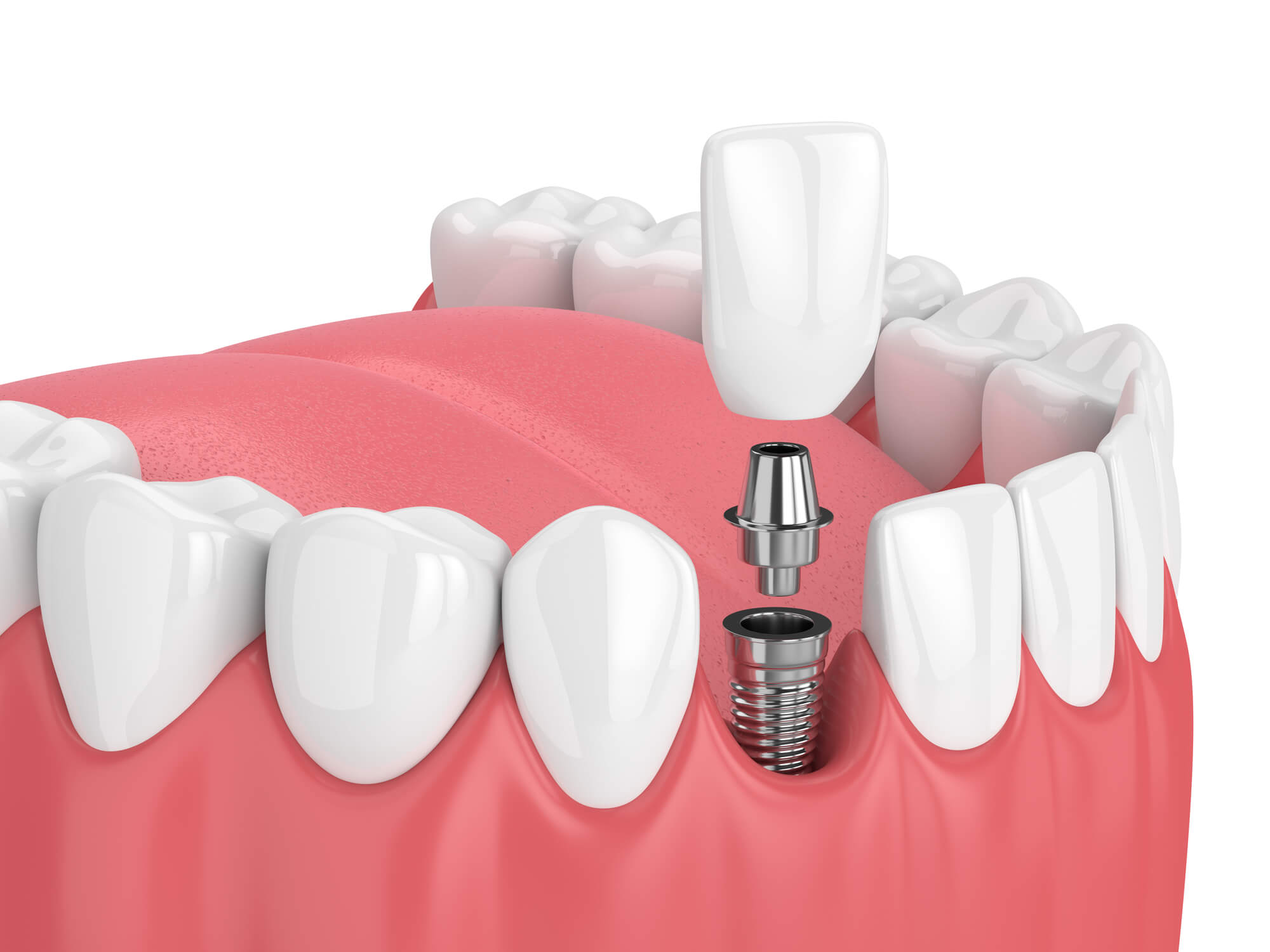 where can i get dental implants in fort pierce?