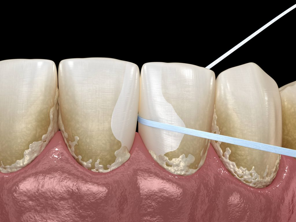flossing at Dental offices Fort Pierce