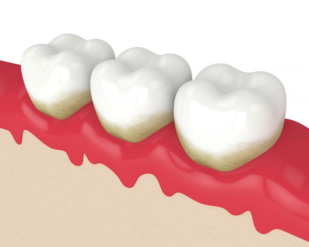 Port St. Lucie Family Dentist¬