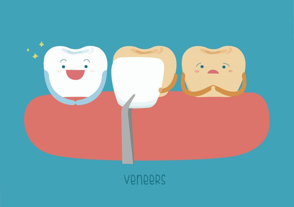 Cosmetic Dentist Fort Pierce veneers diagram