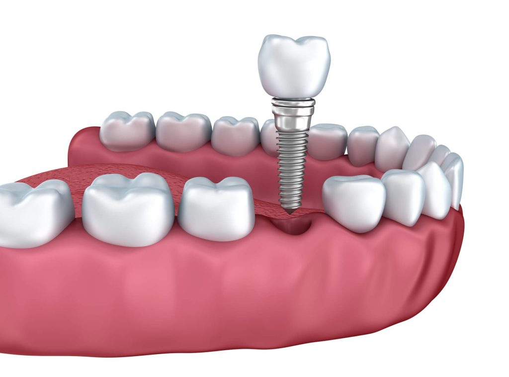 Dental Implants Port St. Lucie