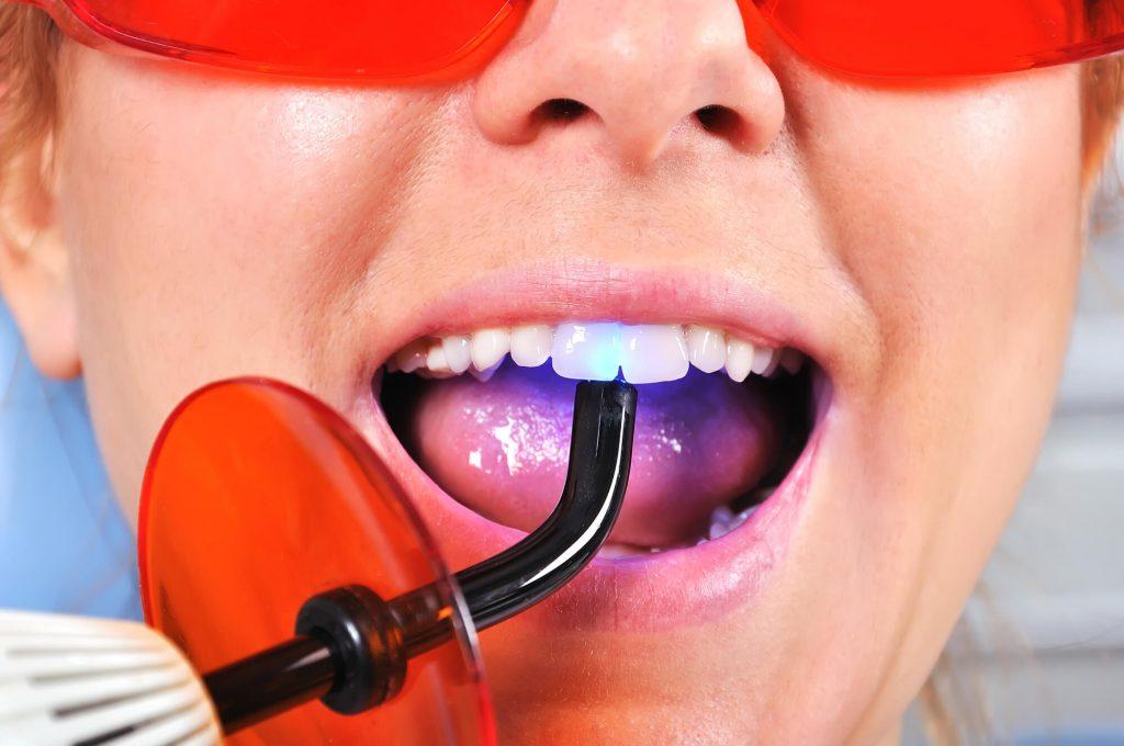 Dental office in port st. lucie filling teeth