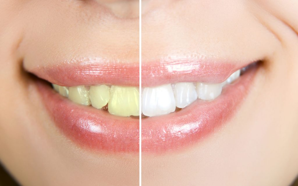 teeth whitened by best dentist port st lucie
