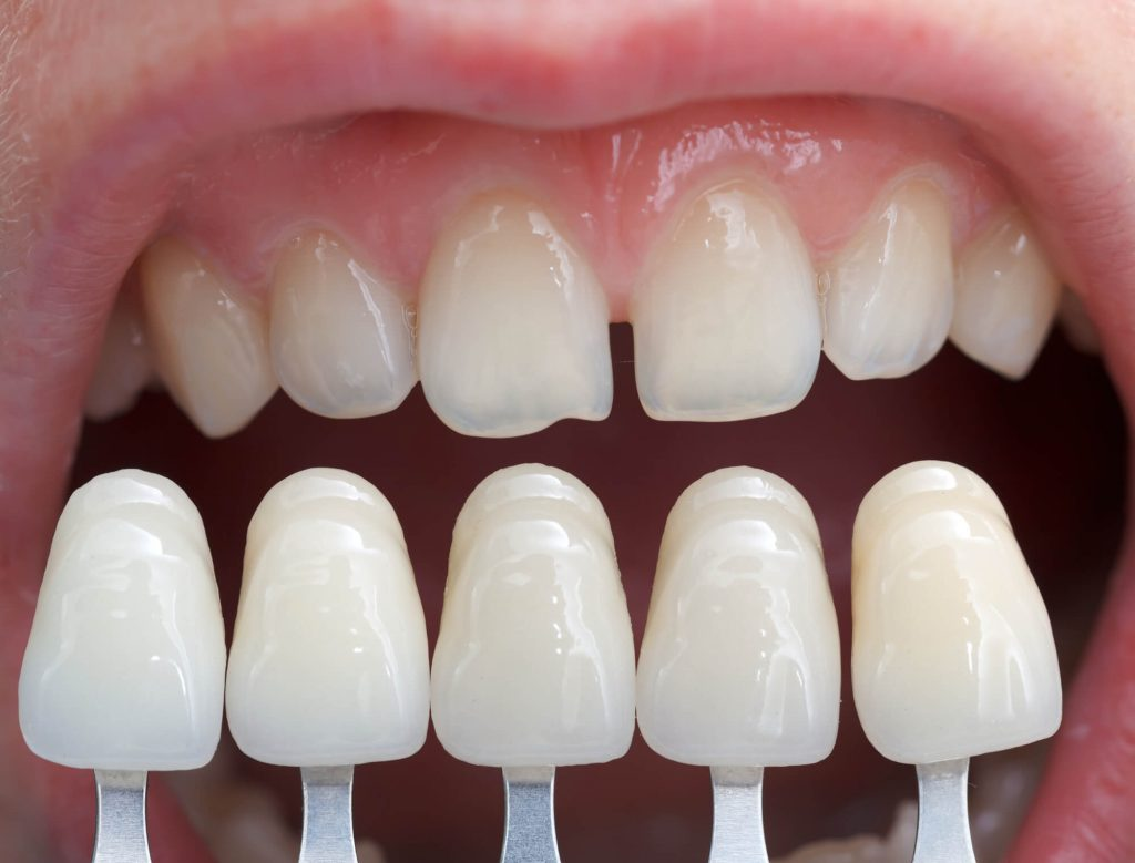 comparing the color of natural teeth with Veneers Port St. Lucie shade guide