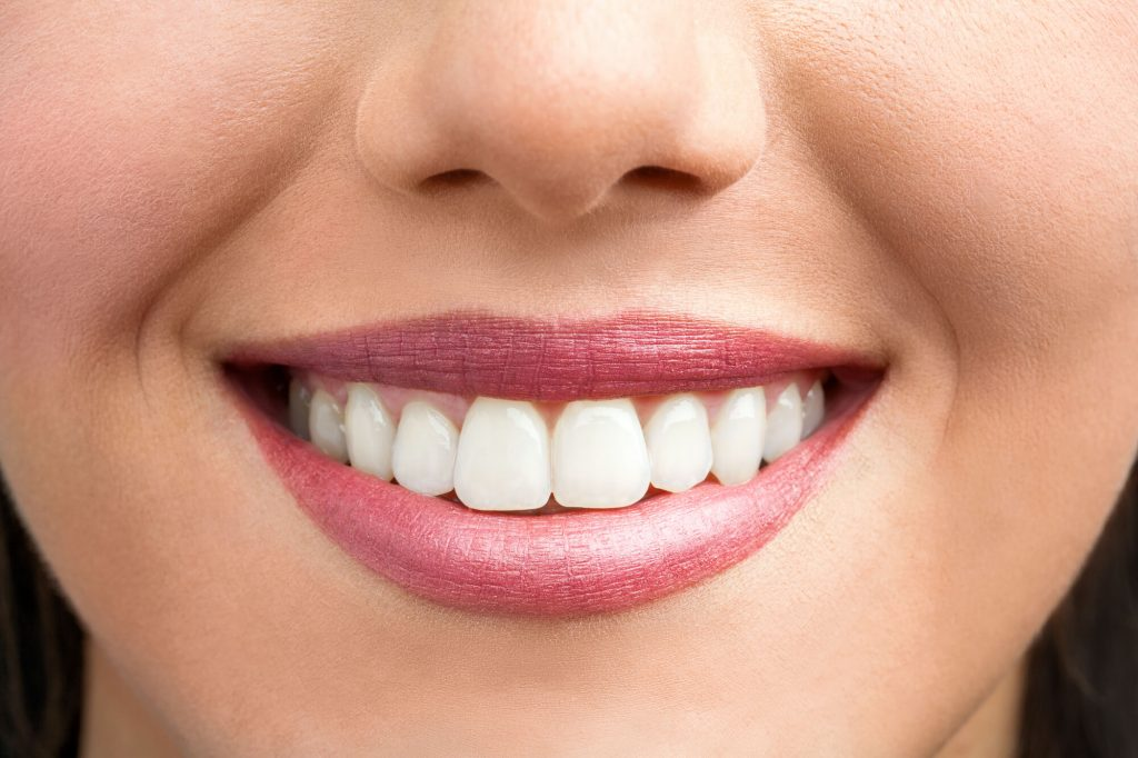 girl with white teeth best dentist port st lucie