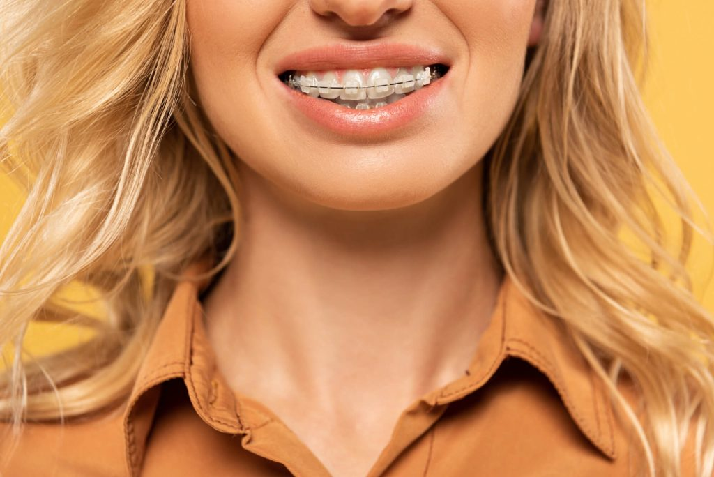 girl with braces in port st lucie
